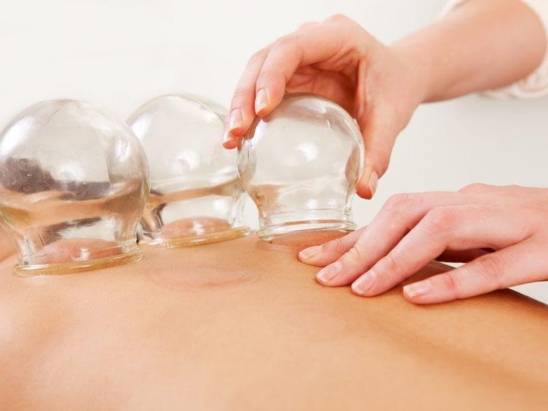 Θεραπεία Ψυχρών Βεντουζών - Cupping Therapy